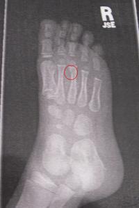 caleb-foot